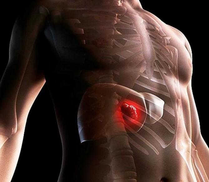 Причины, симптомы и лечение токсического поражения печени