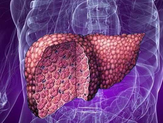 Как лечить жировой гепатоз печени.  Лечение. Препараты